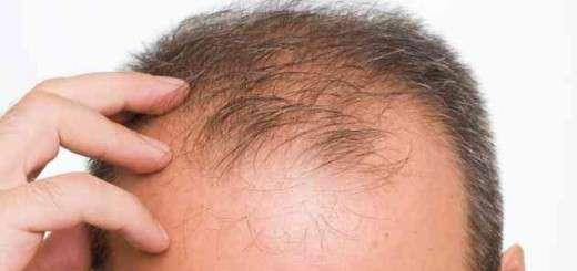 male-pattern-baldness-main_0