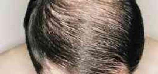 هۆكارهكانی قژ ڕوتانهوه